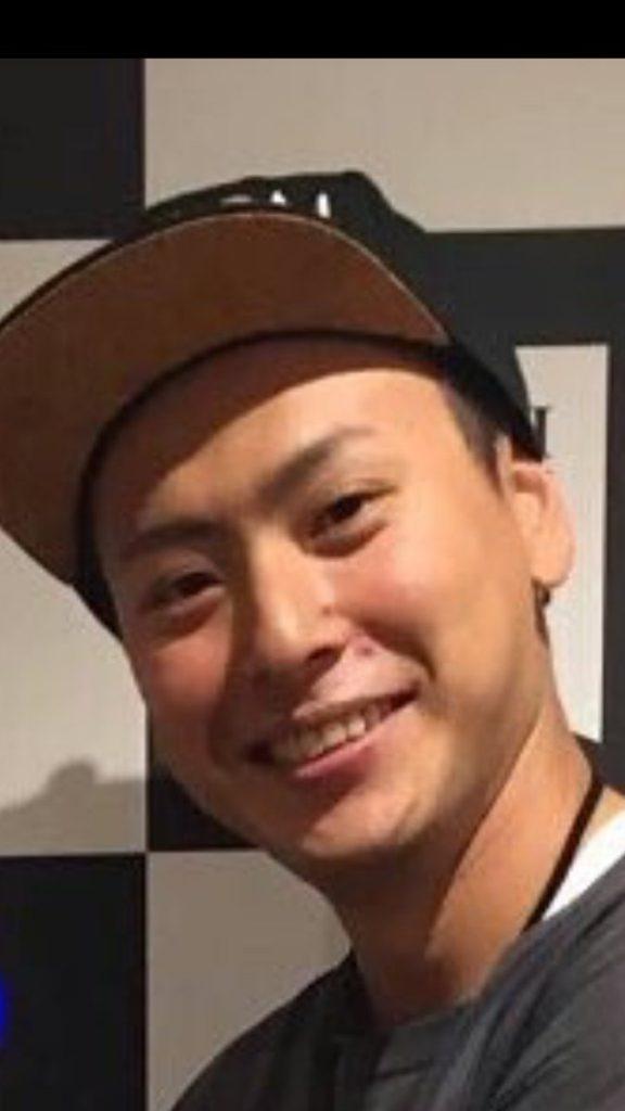 山下健二郎 ニキビ 2