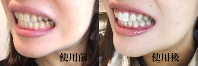 Hokoro_before_after
